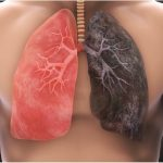Is Mesotheliomas Lung Cancer